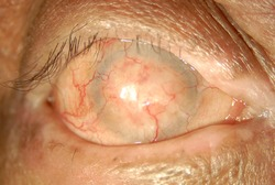 Complete keratinization of the ocular surface in patient with ocular cicatricial pemphigoid